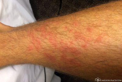 Rash in response to antibiotics